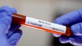 नेपालमा एकैदिन १७० जनामा कोरोना पुष्टि, संक्रमितको संख्या १ हजार २१२ पुग्यो