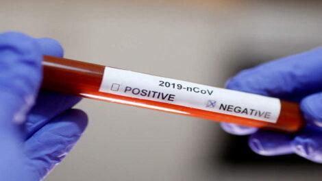 बेलायतमा कोभिड–१९ सङ्क्रमितको उपचारमा 'स्टेरोइड डेक्सामेथासोन' को सफल नतिजा