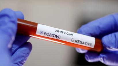 कोरोनाबाट विश्वभर ७३ नेपालीको मृत्यु, ५ हजार संक्रमित